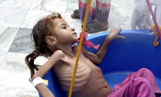 UN agency warns time running out to prevent Yemen famine
