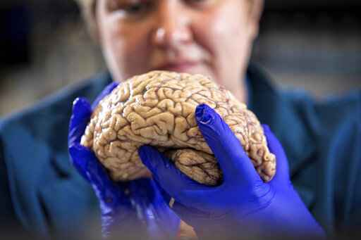 Scientists rethink Alzheimer's, diversifying the drug search