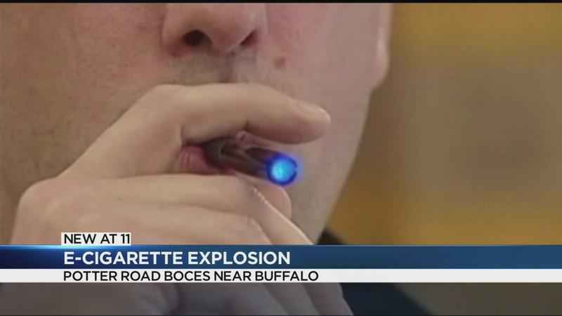 E-Cigarette explosion injures western New York student
