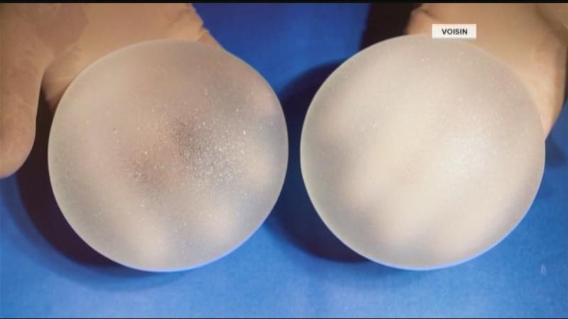 News10NBC Investigates: Textured breast implants recalled, breast cancer survivors on edge